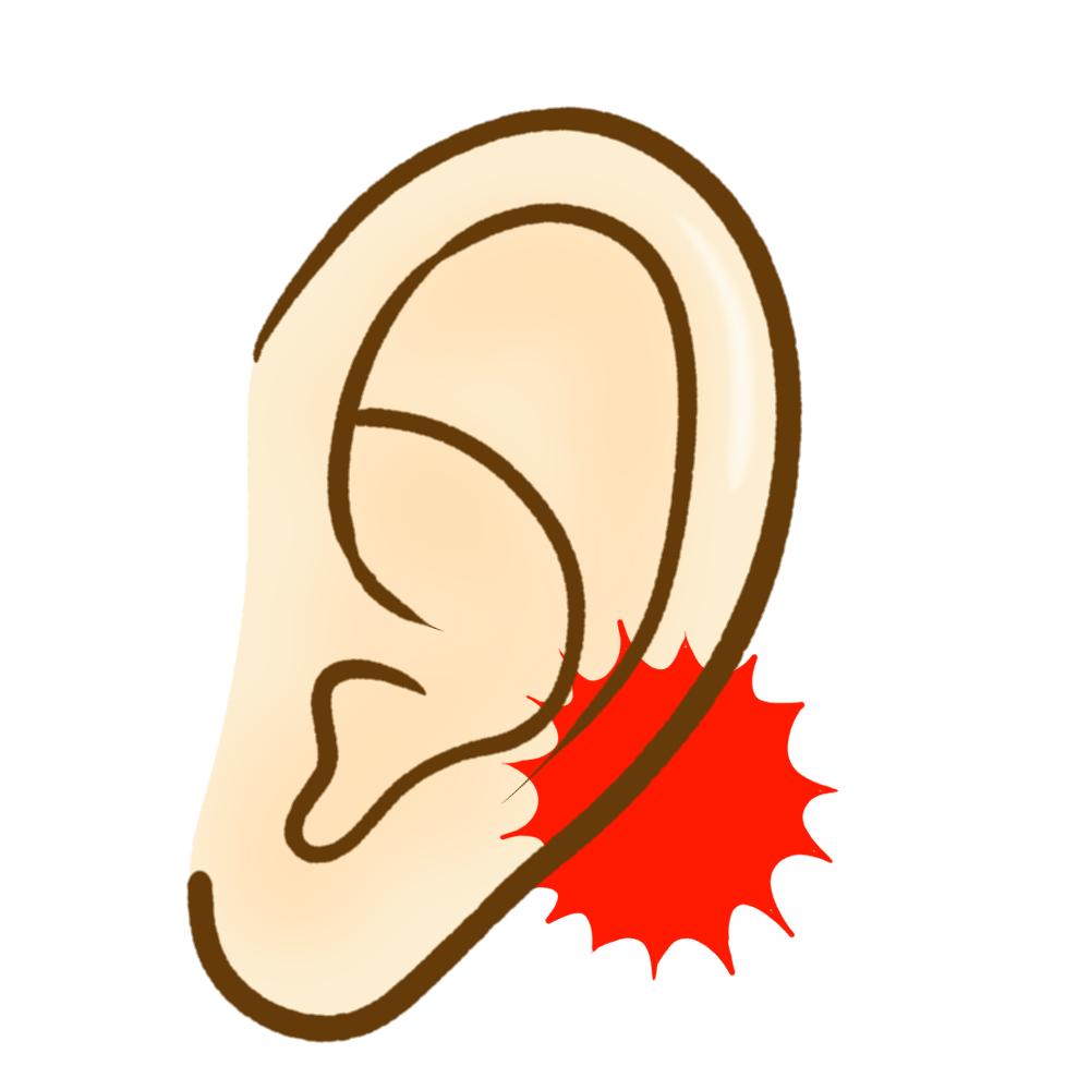 耳垢栓塞のイメージ
